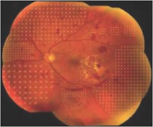 Retinal Physician Evolution Of Retinal Laser