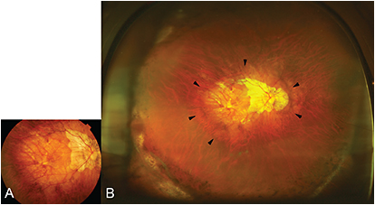 Figure 2. Fundus photo with staphyloma (both 50 degree and Optos). A. A 50-degree photo of right fundus shows diffuse chorioretinal atrophy, however, the presence of staphyloma is not obvious. B. Widefield fundus image by Optos clearly shows the border of wide staphyloma (outlined by arrowheads).