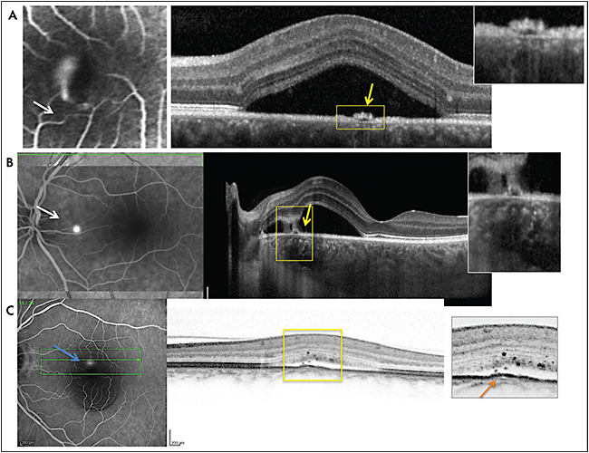 Figure 1. Acute central serous chorioretinopathy (CSCR) with a smokestack leaky RPE break on FA (white arrow) and a bullous detachment of the macula. Note the focal RPE detachment on SD-OCT corresponding to the leaky point (yellow arrow and magnification) (A). Acute CSCR with a leaky RPE break temporal to the optic nerve on FA (white arrow), leading to a temporal juxtafoveal serous detachment. Note the RPE detachment at the leaky point (yellow arrow and magnification) with hyper-reflective vertical tracks, potentially corresponding to proteins suspended in the subretinal fluid (B). Low-intensity leaky point (white arrow) corresponding to a subtle RPE bump (yellow arrow and magnification), over pachyvessel (orange arrow) and with hyperfelective dots in the subretinal fluid and the outer retina (C).