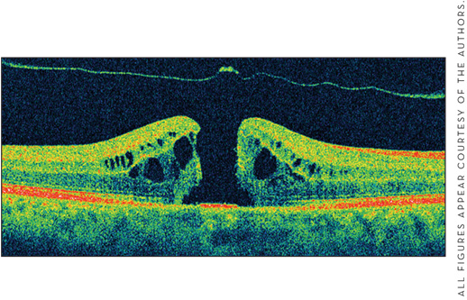 Retinal Physician - Current Approaches to Macular Hole Surgery and