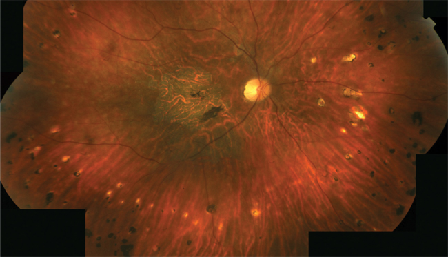 Composite Image Of The Right Eye Showing Flecks Throughout The Posterior  Pole, Atrophic Macular Changes And Several Punched Out Spots In The  Periphery.  Presumed Ocular Histoplasmosis