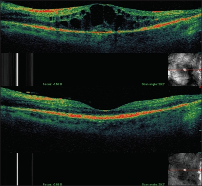 Safety of Intravitreal Anti-VEGF Agents