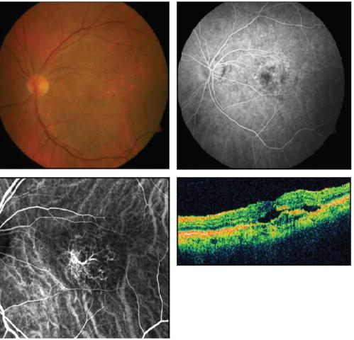 Retinal Physician Where Do Pcv And Rap Fit In The