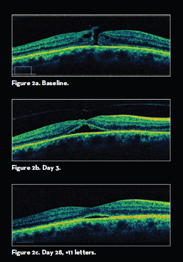 retinal physician prospects for nonsurgical closure of macular