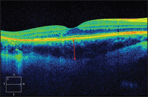 Figure 3 This 29 Year Old Female Patient With A History Of Retinal Detachment Repair 7 Years Ago Presented Visual Obscurations