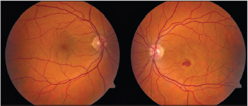 Color Fundus Photography Revealing Small Drusen In The Right Eye And A Subretinal Hemorrhage Fluid Retinal Pigment Epithelium Changes