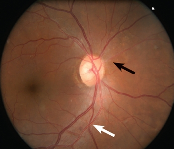 Retinal Physician - Current Concepts In Hypertensive Retinopathy on