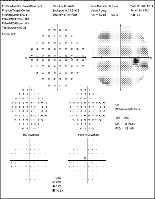 Retinal physician a case of an enlarged blind spot in a healthy she still complained of the occasional flash in the right eye but the enlarged blind spot had improved figure 5 ccuart Images