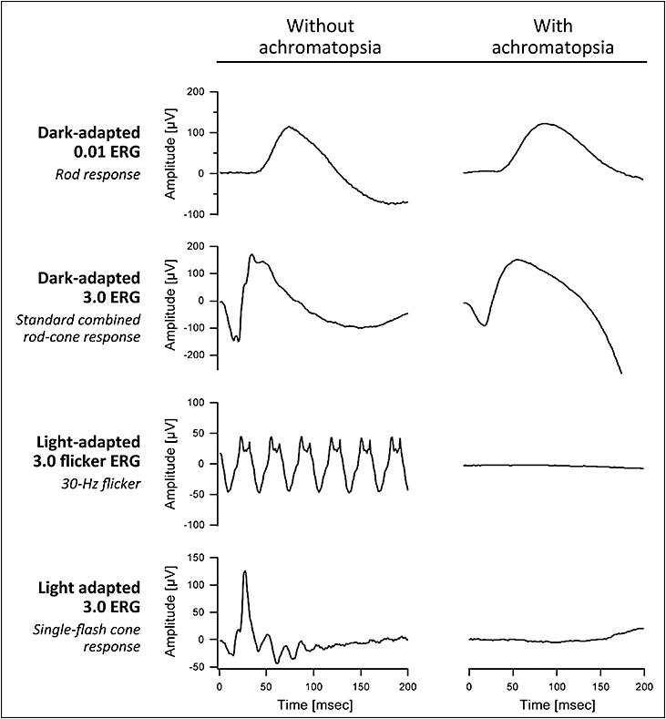 Image result for achromatopsia ERG