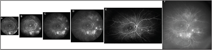 Figure 2. Fluorescein angiography images of a patient with proliferative diabetic retinopathy: 30° (A), 55° (B), and 60° with Ocular Lee-Mainster SLO Lens (C); 102° with the Ocular Staurenghi contact lens (D), 120° on horizontal axis and 80° on vertical axis with Optos imaging system (E); and 150° with the Ocular Staurenghi contact lens (F).