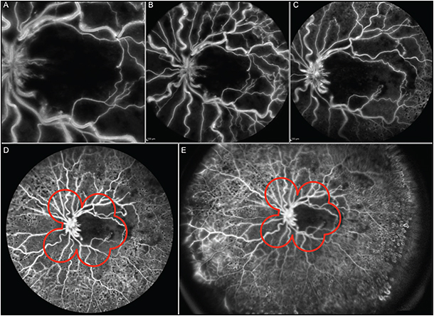 Figure 3. Fluorescein angiography in a patient with retinal vein occlusion: 30° (A), 55° (B), 60° (C), 120° (D), and 150° (E). Red outline shows the 7-field view.