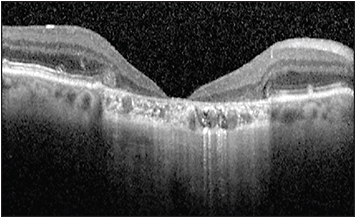 Figure 3. Optical coherence tomography from a patient with GA and severe foveal atrophy resembling a macular hole.