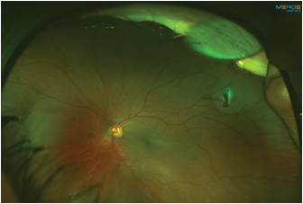 Figure 3. Fundus photo demonstrating superotemporal metal intraocular foreign body embedded in the retina of the left eye.