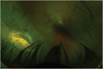 Figure 4. Fundus photo demonstrating inferotemporal large metal intraocular foreign body embedded in the retina of the right eye with an associated retinal detachment.