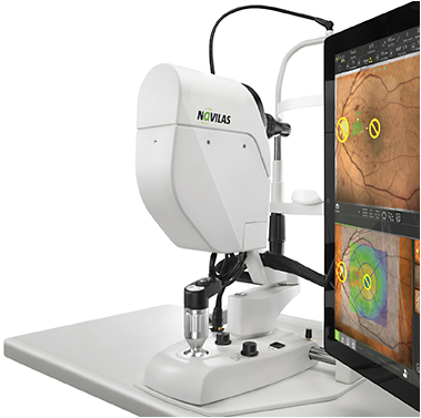 Unlike conventional, slit-lamp based lasers, no binoculars are needed. Instead, all relevant information, including the live view of the patient's retina, are displayed on the screen. During treatment, the physician looks at the screen to observe the patient's retina, see (and steer, if he so chooses) the laser position, and monitor parameters such as laser power.