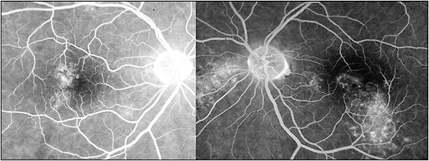 "Figure 3. DRPE/chronic CSC (right eye and left eye) in a patient with Cushing syndrome. Note the leaks at the level of the RPE and RPE atrophic tracts (""gutters"") indicative of chronic leakage."