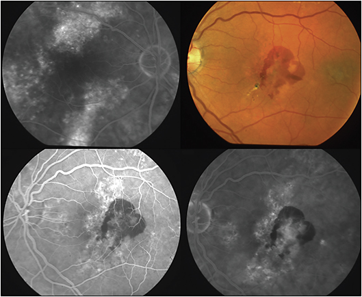 "Figure 4. Choroidal neovascularization (CNV) associated with CSC, left eye. Top left, fluorescein angiography (FA) showing RPE atrophic tracks (""gutters""), right macular region, in a patient with chronic CSC. Top left, subretinal hemorrhage in the patient's fellow eye. Bottom left, early FA frame, bottom right, late FA frame, showing subfoveal CNV associated with the submacular hemorrhage in the region of RPE disruption associated with chronic CSC."