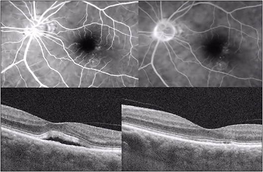 Figure 5. Photodynamic therapy of CSC. Fluorescein angiography (early frame, top left, late frame top right, showing pinpoint RPE leaks in temporal macular region of the left eye) and pre- (bottom left) and post-PDT (bottom right) OCT images showing resolution of foveal detachment in a patient with CSC treated with half-fluence PDT in the area of pinpoint RPE leaks.