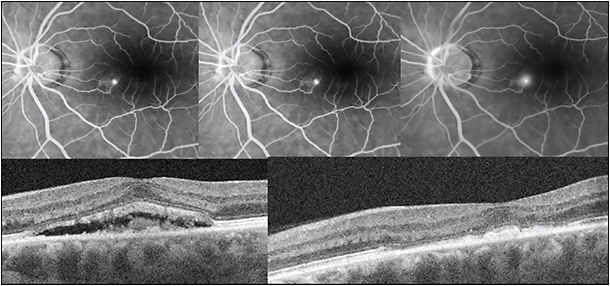 Figure 6. Focal thermal laser therapy of CSC. Fluorescein angiography (early, mid, and late frames, top, showing a single extrafoveal pinpoint RPE leak in the nasal macular region of the left eye) and pre- (bottom left) and post-focal laser (bottom right) OCT images showing resolution of foveal detachment in a patient with CSC treated with photocoagulation of the pinpoint leak.