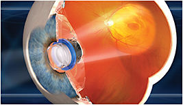 The VisionCare Implantable Miniature Telescope by Dr. Isaac Lipschitz.