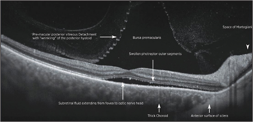 Figure 7. SS-OCT of CSR demonstrating details of vitreoretinal interface, retinal layers, and choroid.
