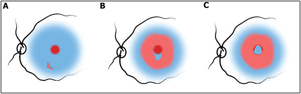 Figure 1. Modification of the inverted internal limiting membrane (ILM) flap technique (ILM hinge or pedunculated flap). Brilliant blue stained ILM with macular hole after initiation of ILM peeling (A). One small flap of ILM is left attached to the hole edge (B). The flap is inverted and made to cover the hole. This can be reinforced by using viscoelastic on top of it (C).