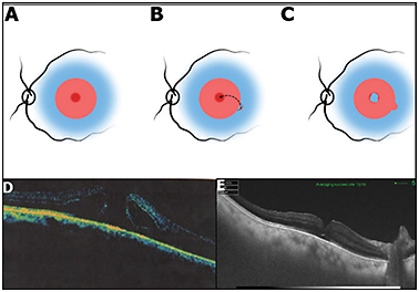 Figure 2. Internal limiting membrane (ILM) free-flap technique. Brilliant blue stained ILM with a circular area of previously peeled ILM (A). A free flap is raised from the margins of ILM (B). The flap is positioned over the surface of the macular hole and reinforced with a low-molecular-weight viscoelastic, if required (C). A 67-year-old female presented with diminution of vision in her right eye for 4 months. SD-OCT showed a large-diameter full-thickness macular hole (D). The patient underwent ILM peeling with autologous ILM free flap. Visual acuity improved to 20/80 at 1 month follow-up from 20/200 preoperatively. SD-OCT at 1 month follow-up showing type 1 hole closure (E).