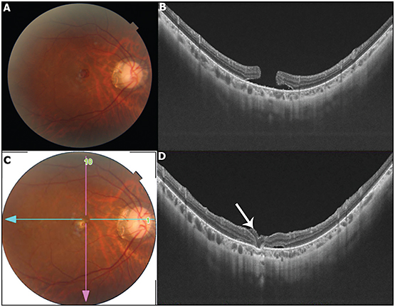 Figure 3. An autologous neurosensory retinal free flap. A 24-year-old female with high myopia (-13D right eye and -16D left eye) presented with diminution of vision in her right eye following blunt trauma. Clinical examination revealed a full-thickness macular hole. Observation for 2 months did not lead to spontaneous closure of the macular hole (A and B). Autologous neurosensory retinal free flap was performed. A 1-month postoperative fundus photo (C) and OCT (D) showed hole closure with intact retinal graft (arrow).