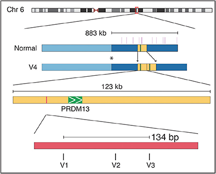 Figure 4. Chromosome 6 ideogram showing the 883 kilobase region on which I performed targeted sequencing. Within that region, there is a 123-kilobase duplication, which is variant 4 (V4) in our Belizean family, which was ascertained with the help of Dr. Maurice Rabb. The more common mutations, variants V1, V2, and V3, are point mutations in the DNASE 1 hypersensitivity binding site thousands of base pairs upstream in a noncoding region. V1 is the mutation present in most American families with NCMD. Image originally published in Small et al.5
