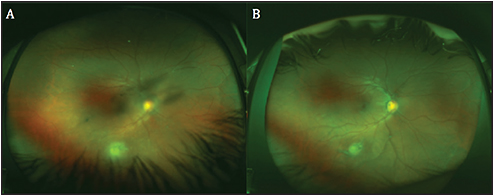 "Figure 1. Fundus images of a pediatric patient with congenital toxoplasmosis of the right eye. Reactivation of the inferior congenital toxoplasmosis lesion is associated with vitritis and mild vasculitis, with a characteristic ""headlights in the fog"" appearance (A). Fundus appearance after consolidation of the reactivation (B)."