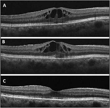 Figure 1. A 63-year-old female developed CME in the right eye 1 month after scleral buckle and vitrectomy with 16% perfluoropropane (C3F8) for macula-sparing retinal detachment (A). She had persistent CME after 6 weeks of treatment with topical steroids and NSAIDs (B). However, 6 weeks after intravitreal injection of triamcinolone acetonide, there was resolution of CME (C).