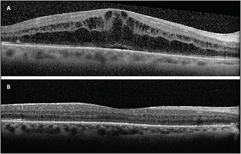 Figure 2. A 72-year-old female developed CME in the right eye 1 month after vitrectomy with 14% perfluoropropane (C3F8) for macula-involving retinal detachment with early proliferative vitreoretinopathy (A). The CME resolved 2 months after treatment with topical steroids and NSAIDs and intravitreal injection of sustained release 0.7 mg dexamethasone (B).