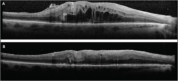 Figure 3. A 65-year-old male developed CME in the right eye after scleral buckle and vitrectomy with 16% perfluoropropane (C3F8). Exam also revealed an epiretinal membrane (ERM) (A). The CME improved after ERM peel and treatment with topical steroids and NSAIDs (B).