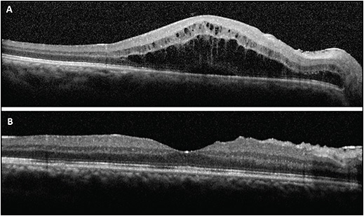 Figure 4. A 43-year-old male developed CME in the right eye 3 weeks after vitrectomy and scleral-sutured intraocular lens for aphakia (A). The CME resolved 2 months after treatment with topical steroids and NSAIDs and intravitreal injection of sustained release 0.7 mg dexamethasone (B). 
