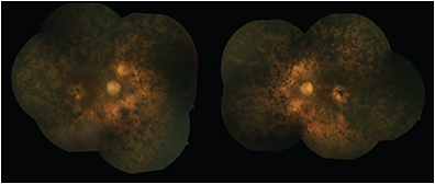 Figure 1. Color fundus photograph of a 70-year-old man with end-stage retinitis pigmentosa showing attenuated retinal arterioles, RPE atrophy, hyperplasia with bone spicule pigmentation, and waxy optic nerve pallor. 
