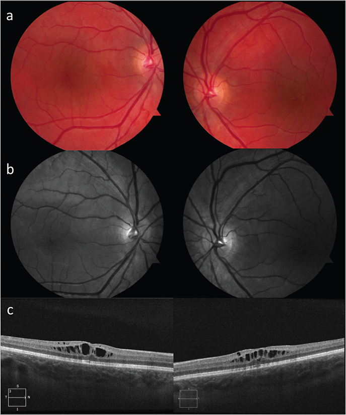 Figure 2. Color fundus photograph of an 8-year-old boy with juvenile X-linked retinoschisis. Visual acuity was 20/40 in the right eye and 20/25 in the left eye (A). Red-free fundus photograph accentuates spoke-wheel pattern of macular schisis in both eyes (B). SD-OCT of foveomacular schisis shows splitting within the inner nuclear layer (C).