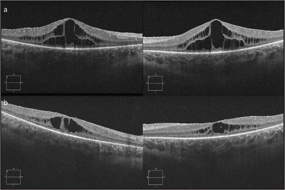 Figure 4. Spectral-domain OCT of a 16-year-old boy with retinitis pigmentosa with bilateral CME. Visual acuity was 20/100 in the right eye and 20/80 in the left eye (A). He was started on topical dorzolamide, and 1 year later, there was improvement in central macular thickness in both eyes (B). Visual acuity was 20/150 in the right eye and 20/80 in the left eye. 