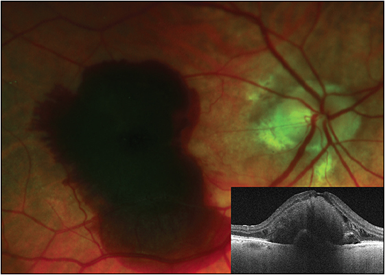 Figure 1. Acute thick submacular hemorrhage in a patient with neovascular AMD, right eye. Inset: OCT image in this patient, showing the presence of a serous pigment epithelial detachment associated with the thick submacular hemorrhage, and foveal photoreceptor disruption.