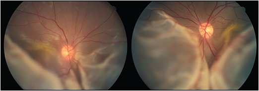Figure 1. Bullous retinal detachment in both eyes in patient 4, a 44-year-old Asian female with protein-losing enteropathy. Her visual acuity was 20/400 in both eyes.