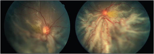 Figure 2. Progression of retinal detachment in patient 4, resulting in massive diffuse subretinal fibrosis in both eyes.