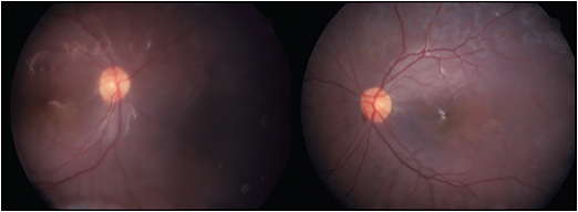Figure 3. One month following vitrectomy, retinotomy, release of subretinal bands, and silicone oil placement for patient 4, retinal reattachment has occurred in both eyes. The vision initially improved to 20/80 in both eyes but decreased to 20/200 in both eyes during follow-up.