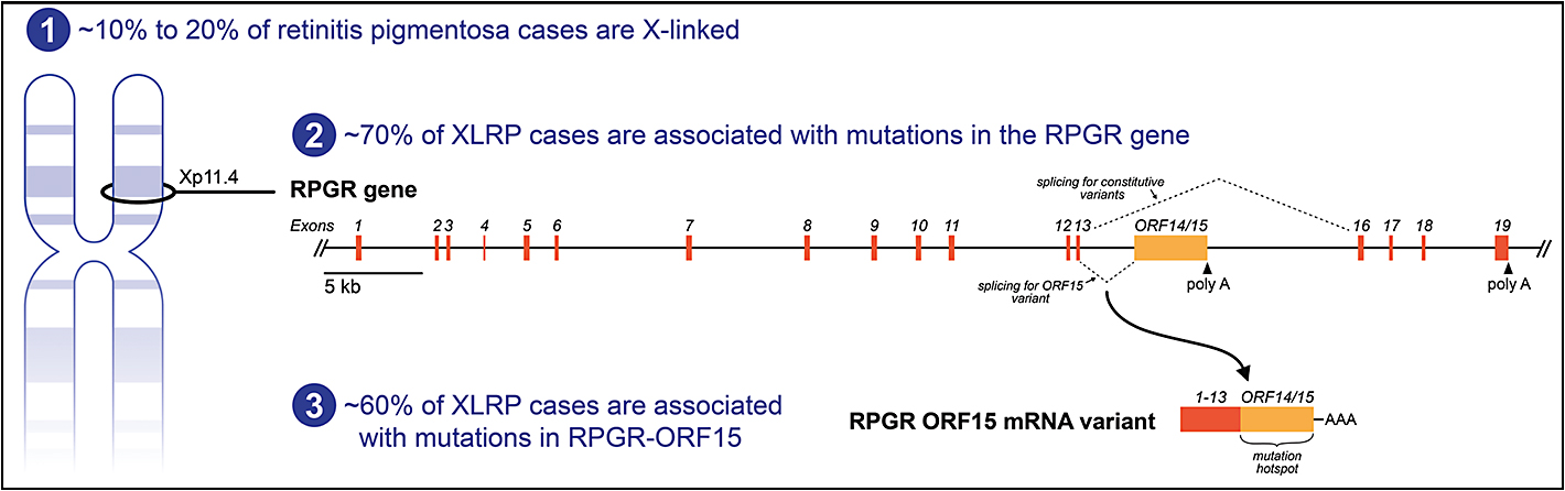Figure 2. X-linked retinitis pigmentosa (XLRP) and the RPGR-ORF15 messenger RNA (mRNA) variant. Schematic representations of the RPGR genomic locus and the RPGR ORF15 mRNA variant that is expressed in photoreceptor cells. Approximately 10% to 20% of retinitis pigmentosa cases are linked to the X chromosome, and of these, approximately 70% are caused by mutations in the RPGR gene.2-5 Full-length RPGR mRNA that does not include ORF15 is expressed in a variety of cell types.10 Alternate splicing creates an RPGR-ORF15 mRNA variant that is expressed in photoreceptor cells.11-13 Approximately 60% of XLRP cases are caused by mutations in the ORF15 region.13