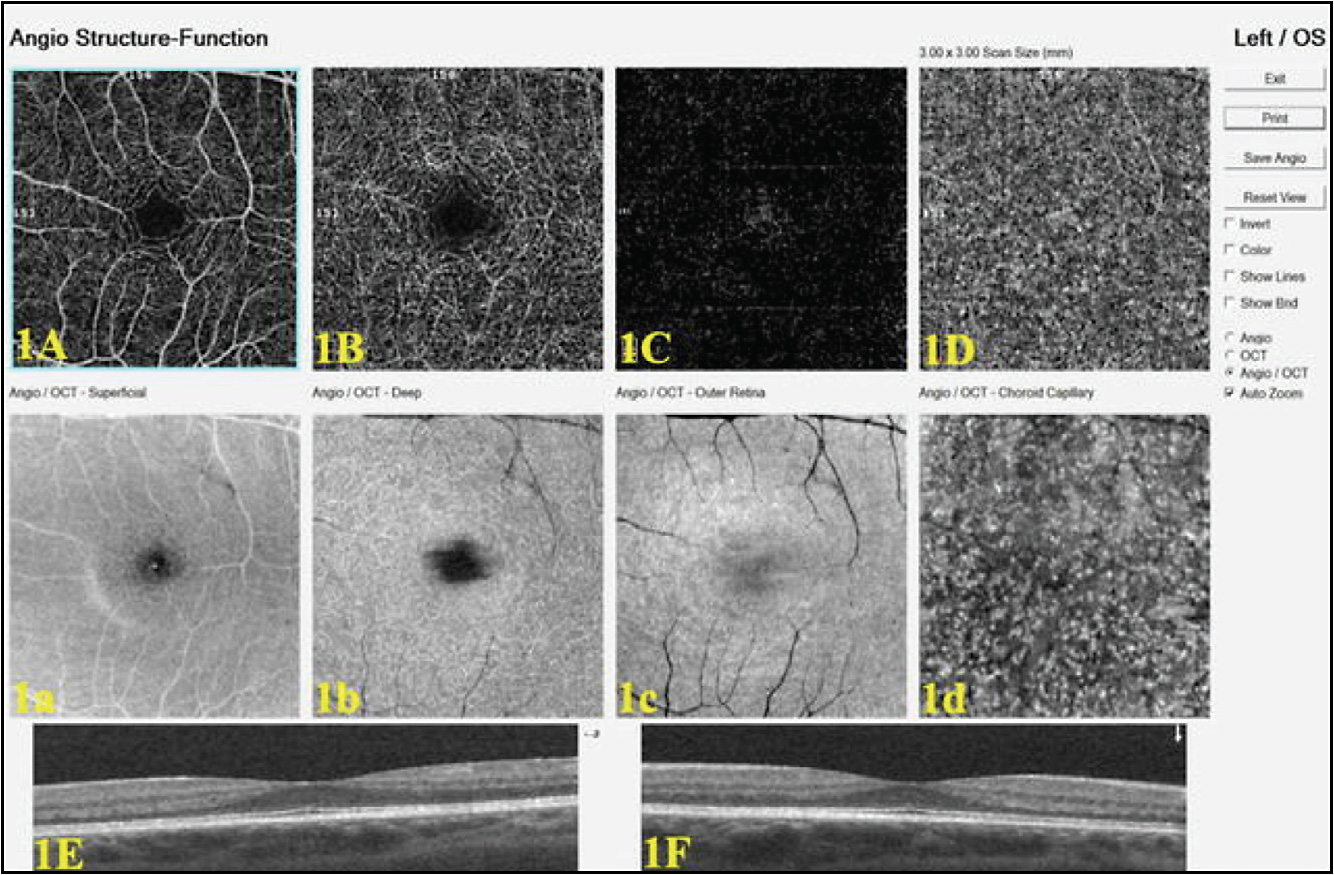 Figure 1. Normal OCT angiogram showing the segmentation of the retina into various slabs (Optovue AngioVue).