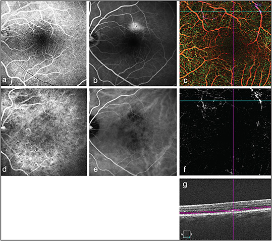 Figure 1. Fluorescein angiography, ICG, and OCTA (Zeiss Angioplex) of a patient with a known history of dry AMD. Early FA without evidence of pathology or vascular abnormalities (A). Late staining / leakage seen in the superior macula concerning for possible CNV (B). Depth-encoded retinal OCTA (6 mm x 6 mm) demonstrates no obvious retinal vascular abnormalities (C). Early ICG demonstrates patchy choroidal filling (D), while late ICG (E) demonstrates macular flow voids without any hyperfluorescence or vascular leakage. En-face OCTA through the outer retina (segmentation demonstrated in image G) shows no evidence of CNV/vascular structures in area corresponding to area of late hyperfluorescence seen on FA (F, G). In this case, the lack of nonspecific background staining allows OCTA to clearly demonstrate the lack of CNV, whereas FA is ambiguous. Use of OCTA in this case may obviate the need for further invasive dye testing to monitor this patient.
