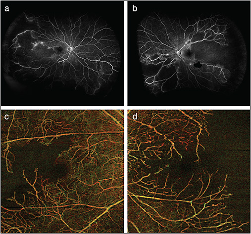 Figure 3. Widefield FA and OCTA (6 mm x 6 mm) (Zeiss Angioplex) in a young woman with a diagnosis of  lupus-associated retinal vasculitis. Widefield FA of the right (A) and left (B) eyes demonstrates marked retinal nonperfusion, as well as some areas of vascular leakage and/or staining. Depth-encoded  OCTA of both retinas clearly shows the extent of macular ischemia in both eyes but also demonstrates the limited field-of-view in comparison to widefield FA (C, D).