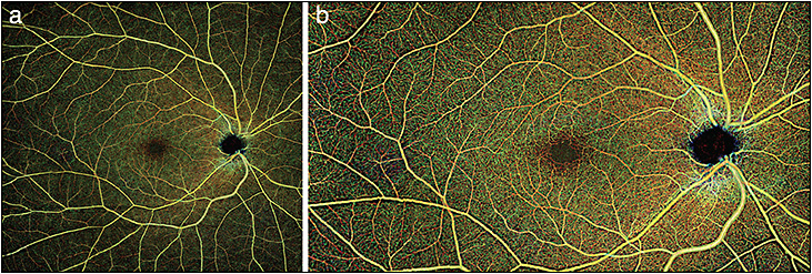 Figure 4. Both A and B represent widefield montages in a normal patient reconstructed by the currently research-only swept-source-based Zeiss Plex Elite 9000 OCTA platform, and demonstrate the potential wide-angle imaging capabilities of OCTA.