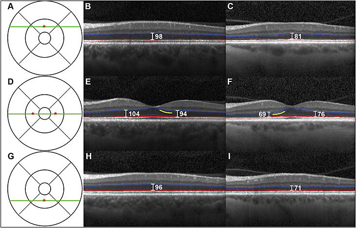Figure. Frontotemporal degeneration with outer retina thinning. OCT images from a control and FTD patient showing outer nuclear layer thinning. The ETDRS grid is shown in A, D, and G with the green line indicating the location of the OCT scan and the red asterisk indicating the location of a point measurement. The control (B, E, H) is a 61-year-old white female. The patient (C, F, I) is a 60-year-old white female clinically diagnosed with the behavioral variant of FTD. This FTD patient has presumed tauopathy because she has a MAPT E10+16 C>T mutation. The Iowa Reference Algorithm segmentation lines for the ONL are shown in red and blue. Yellow lines indicate locations of hyper-reflectivity related to Henle's fiber layer.26 Spectralis (Heidelberg Engineering) caliper point measurements (μm) of ONL thickness are labeled in white. Reprinted with permission from Wolters Kluwer.25
