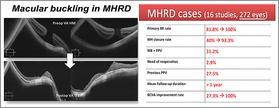 Figure 1. MB in MHRD: OCT scans of an MHRD treated with MB (left). Anatomical and functional results included in the review, as cited in the text (right).
