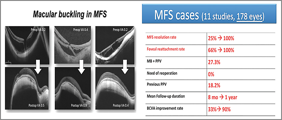 Figure 2. MB in MFS: pre- and postoperative OCT scans of 3 different cases of MFS treated with the MB technique (left). Anatomical and functional data including all of the published studies included in the review (right).