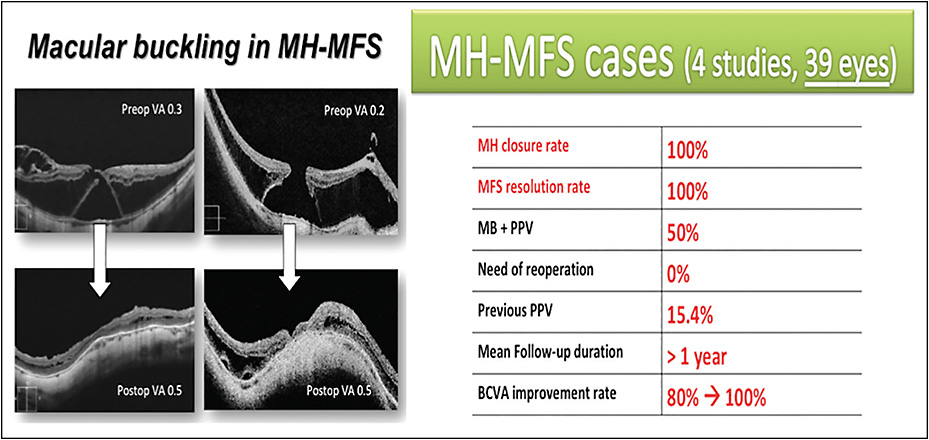 Figure 3. MB in MH-MFS: 2 cases of MH and associated foveoschisis that underwent MB (left). Anatomical and functional results included in the review, as cited in the text (right).